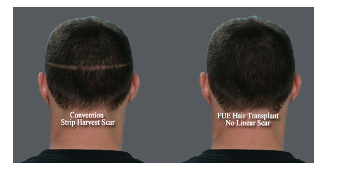 FUE _LinearScar_Comp_Gray Back